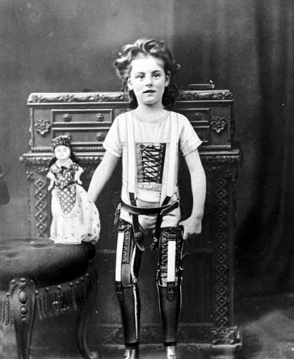 A child with artificial legs (1898).