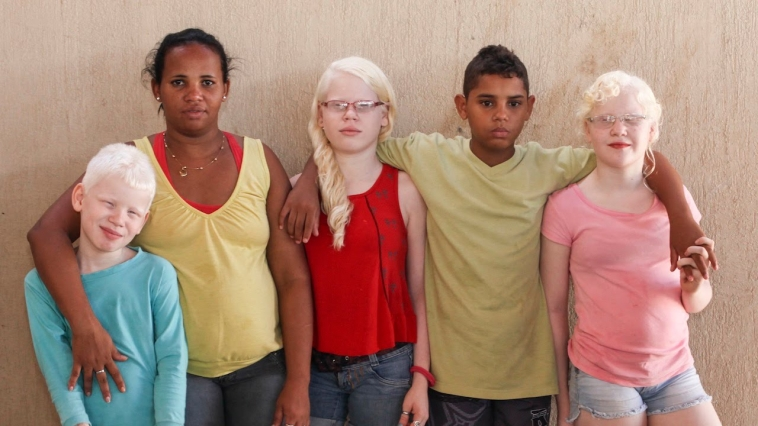 Brazilian mother with three albino kids