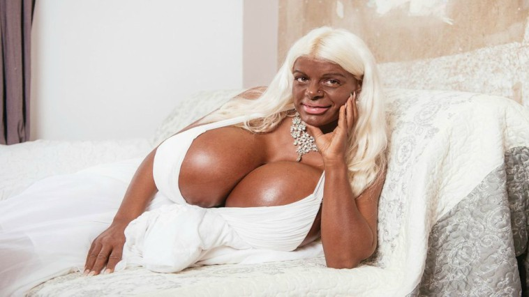 Model with World's Biggest Boobs Gets Tanning Injections to Look 'African  Dark'